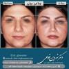 جراحی بینی بزرگ