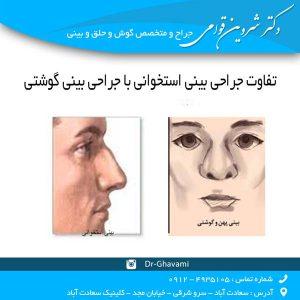 تفاوت جراحی بینی استخوانی با جراحی بینی گوشتی