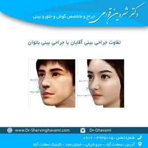 تفاوت جراحی بینی آقایان