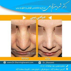 درباره جراحی بینی