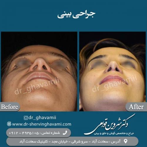 جراحی-بینی-32