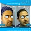 نحوه جراحی بینی