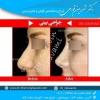 جراح بینی گوشتی در تهران