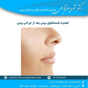 اهمیت شستشوی بینی بعد از جراحی بینی
