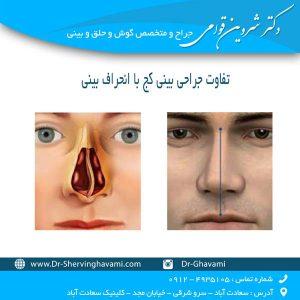 تفاوت جراحی بینی کج با انحراف بینی