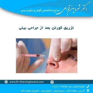 تزریق کورتن بعد از جراحی بینی