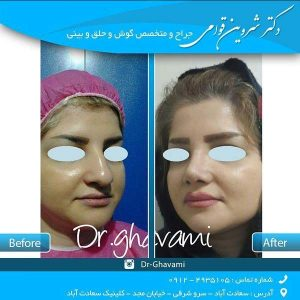 بهترین جراح بینی گوشتی