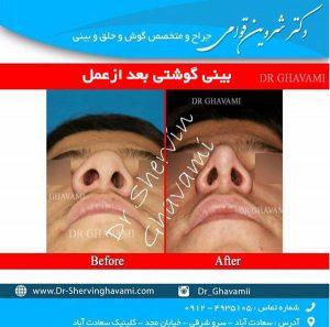 بینی گوشتی بعد از عمل