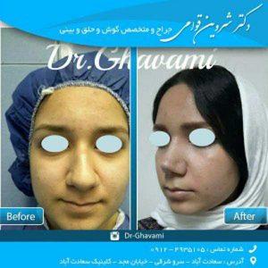 عمل مجدد بینی گوشتی
