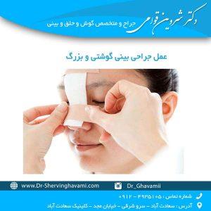 عمل جراحی بینی گوشتی و بزرگ