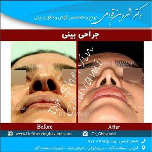 جراحی زیبایی بینی پهن