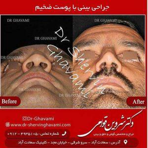 جراحی بینی با پوست ضخیم