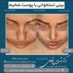 بینی استخوانی با پوست ضخیم