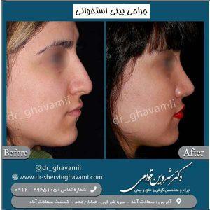 جراحی بینی استخوانی 2