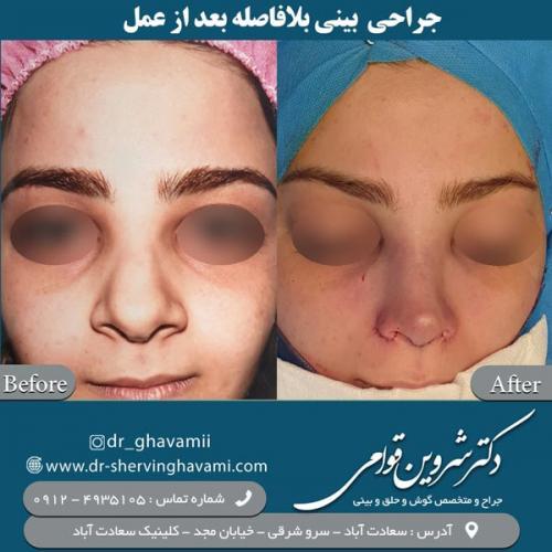 جراحی-بینی-170