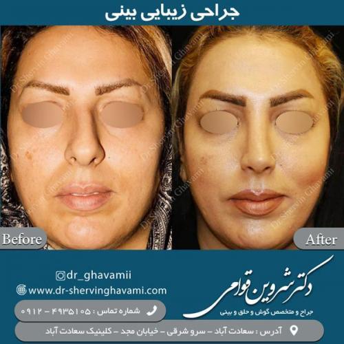 جراحی بینی 138