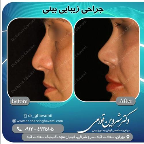 جراحی بینی 142