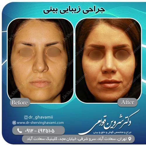 جراحی بینی 144