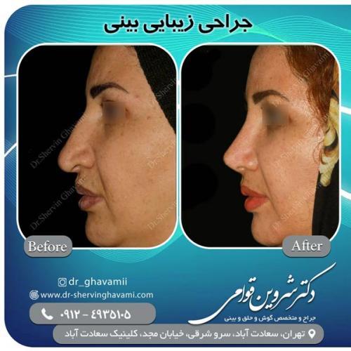 جراحی بینی 145