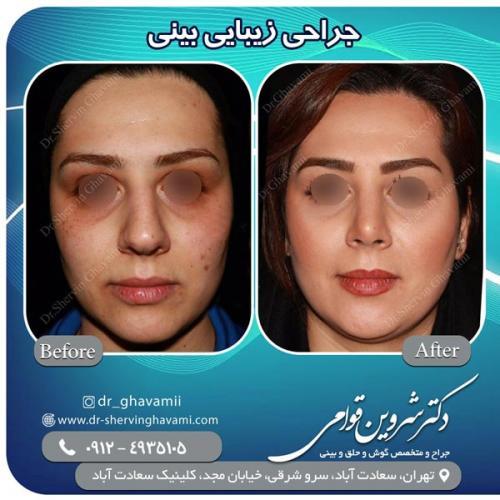 جراحی بینی 148