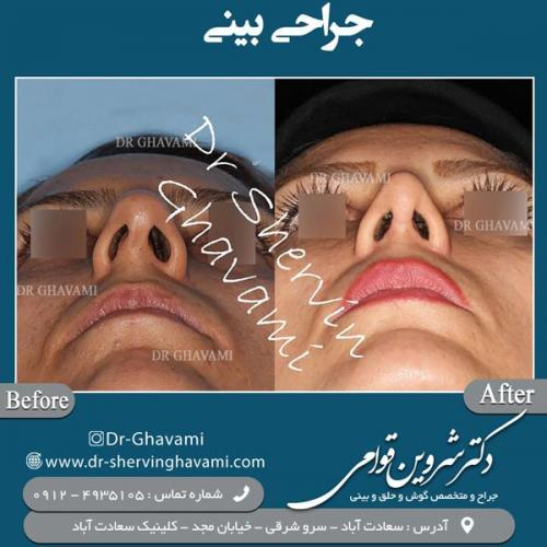 جراحی بینی 152