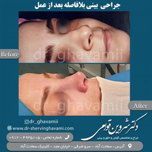 جراحی بینی 155