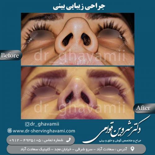 جراحی بینی 160