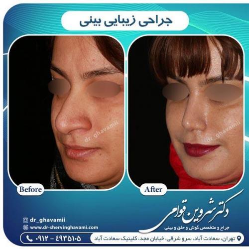جراحی بینی 299