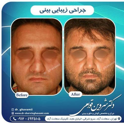 جراحی بینی 301