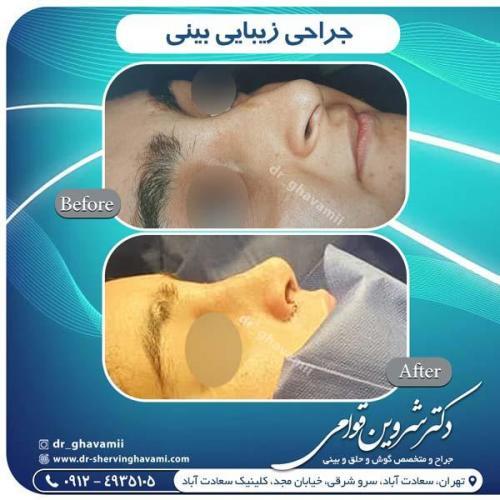 جراحی بینی 306