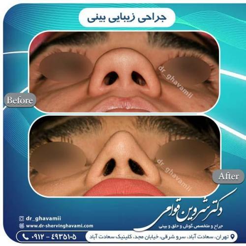 جراحی بینی 316
