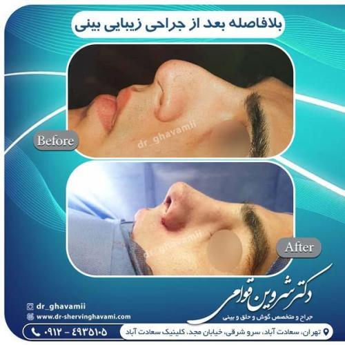 جراحی بینی 318