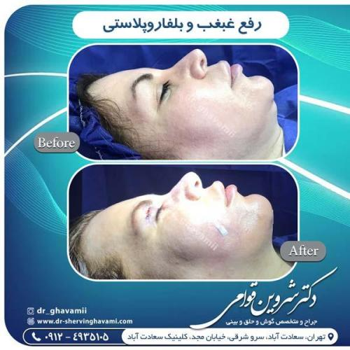 جراحی بینی 320 (1)