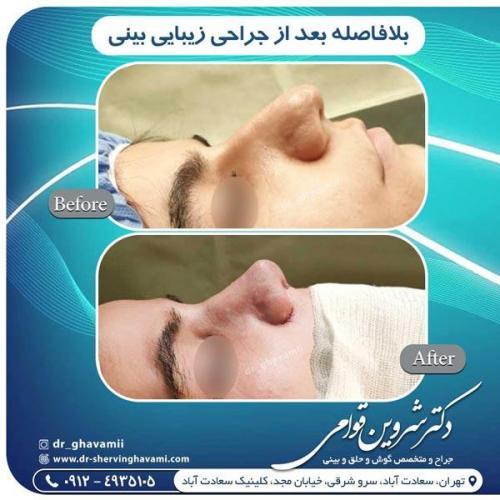 جراحی بینی 334