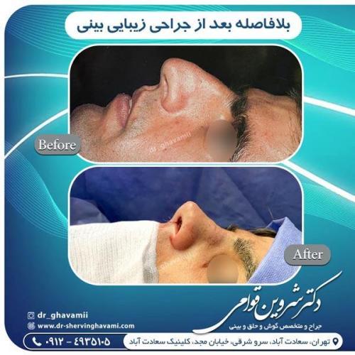 جراحی بینی 335