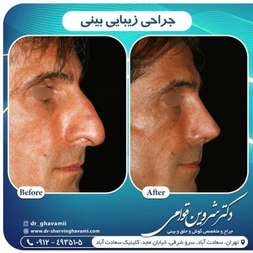 جراحی بینی 338