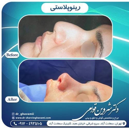 جراحی بینی 341
