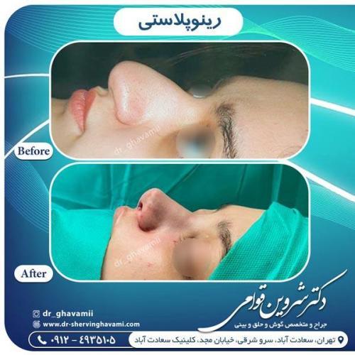جراحی بینی 342
