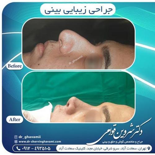 جراحی بینی 344
