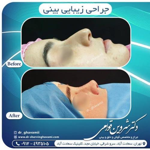 جراحی بینی 346