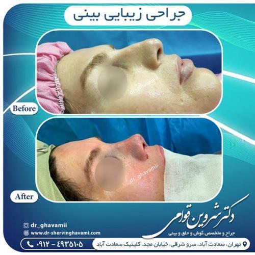 جراحی بینی 349