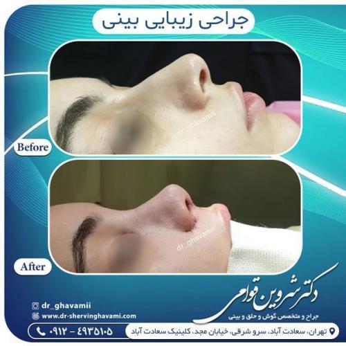 جراحی بینی 350