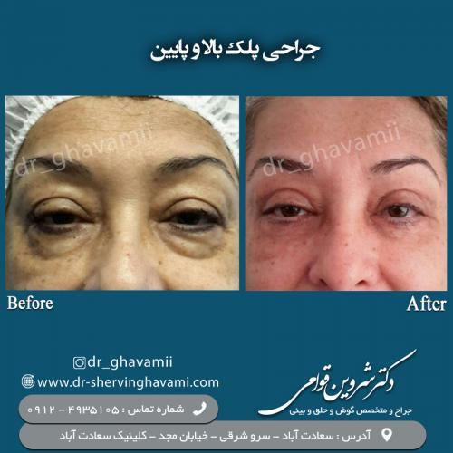 جراحی پلک 2