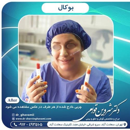 جراحی بوکال فت 11