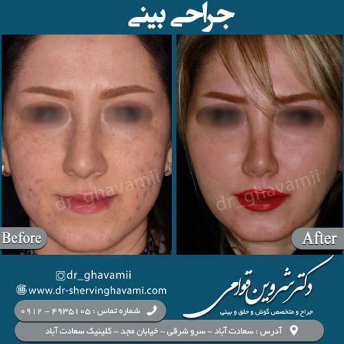 جراحی-بینی-1
