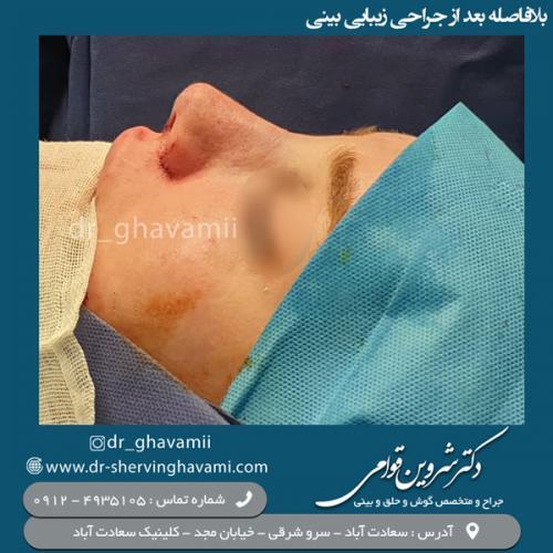 جراحی-بینی-102