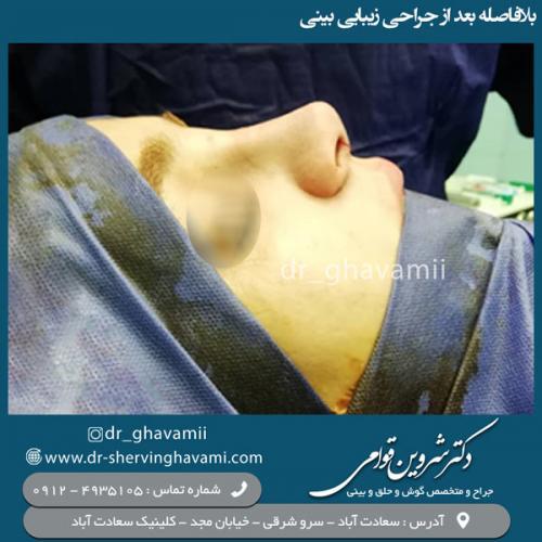 جراحی-بینی-105