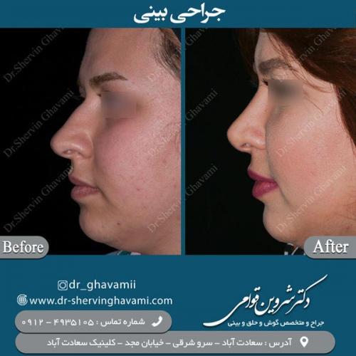 جراحی-بینی-117