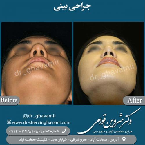 جراحی-بینی-18