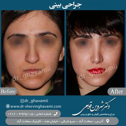 جراحی-بینی-34